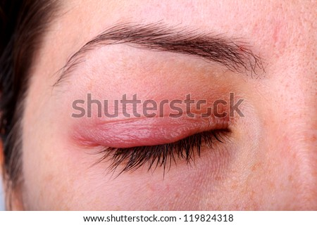 Eye diseases.. Closed woman's eye with sty. - stock photo