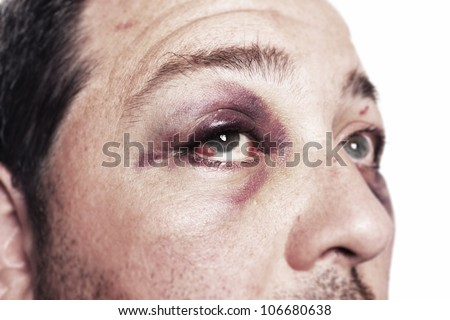 eye injury, male with black eye isolated on white. man after accident or fight with bruise - stock photo