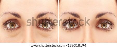 Eyes before and after blepharoplasty - stock photo