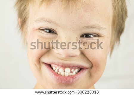 Face of a young boy with Downs Syndrome