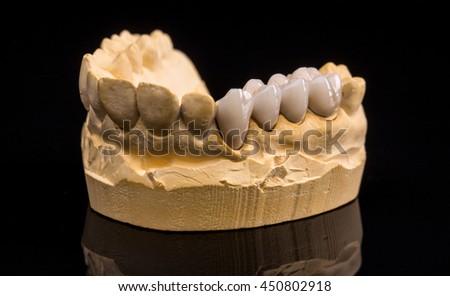 False teeth on gypsum jaw on black background - stock photo