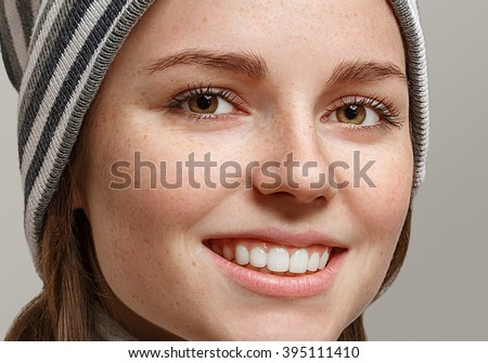 Fashion girl hipster freckles face with two long braids. Woman in stripes hat. Beautiful smile healthy teeth - stock photo