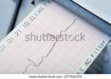 Fast diagnosis of cardiac rhythm disorders. Macro photo - stock photo