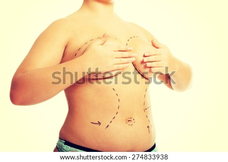 Fat woman before a plastic surgery. - stock photo