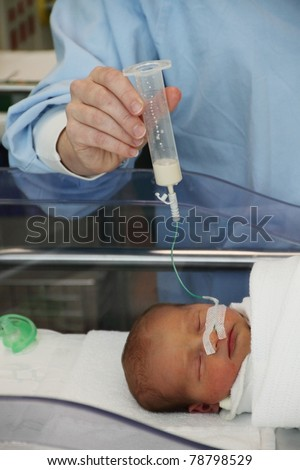 feeding tube being used by premature baby twin - stock photo