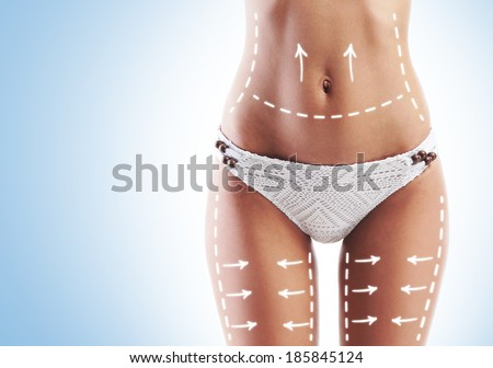 Female body with the drawing arrows. Fat lose, liposuction and cellulite removal concept. - stock photo