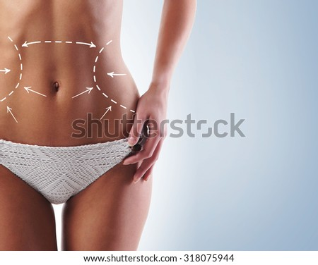 Female body with the drawing arrows on it. Fat lose, liposuction and cellulite removal concept. - stock photo
