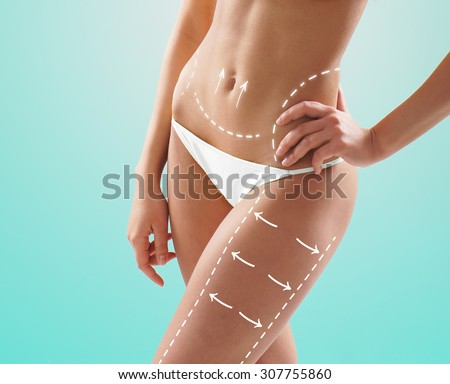 Female body with the drawing arrows on it isolated. Fat lose, liposuction and cellulite removal concept. - stock photo
