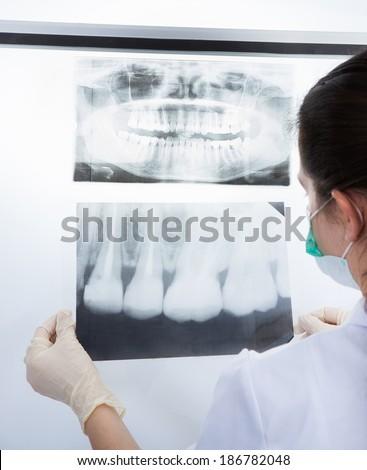 Female dentist examining dental Xray in clinic - stock photo