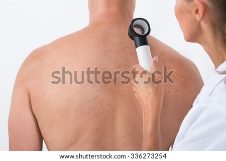Female Doctor Examining Acne Skin On Patient's Back With Dermatoscope - stock photo