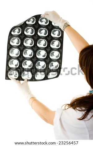 Female doctor looking at a x-ray lungs. Isolated on white background