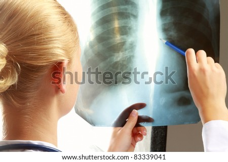 Female doctor with an x-ray.