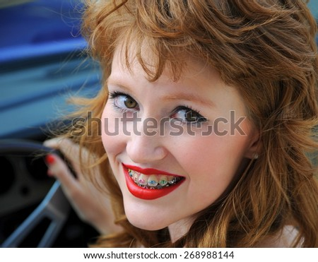 Female fashion model with colorful teeth braces. - stock photo