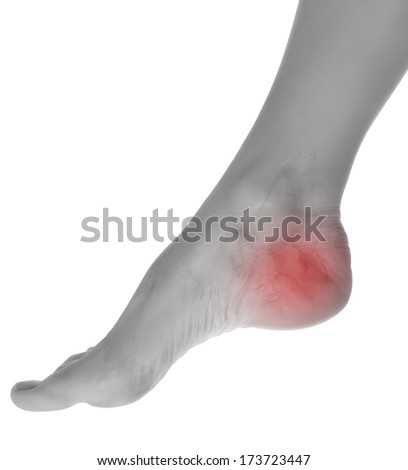 Female foot .Pain concept