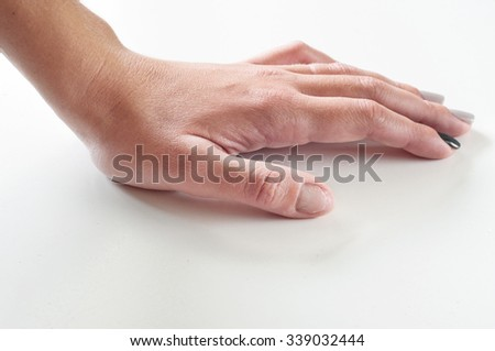 female hand with gnawed fingernail on a white background closeup - stock photo
