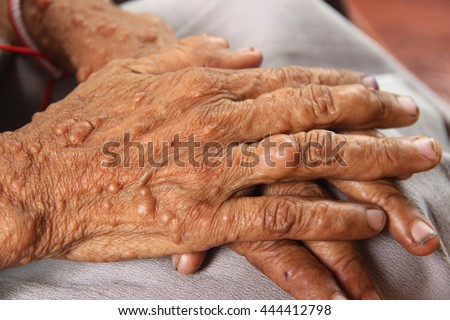 Female hands of neurofibromatosis, genetic disorder that causes tumors on skin.