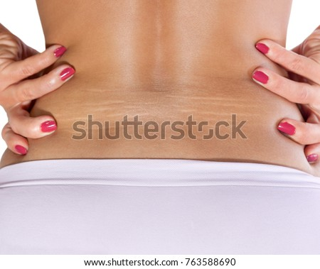 Female lower back with strong stretch marks