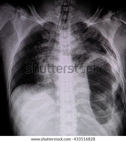Film chest  left  intercostals drainage (ICD)