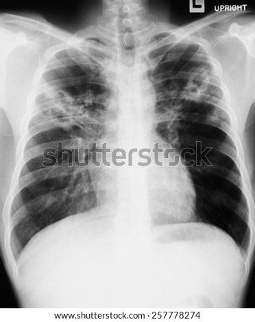 film chest x-ray image of adult human - stock photo