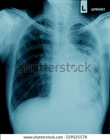 film chest X-ray PA upright : show pleural effusion at left lung due to lung cancer