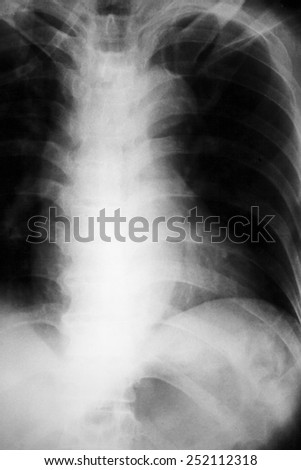 film chest X-ray PA upright : show pleural effusion at right lung due to lung cancer - stock photo