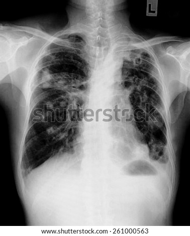 film chest x-ray show alveolar infiltrate at  lung due to Mycobacterium tuberculosis infection (Pulmonary Tuberculosis)