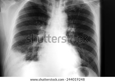 film chest x-ray show mass in right lower lung
