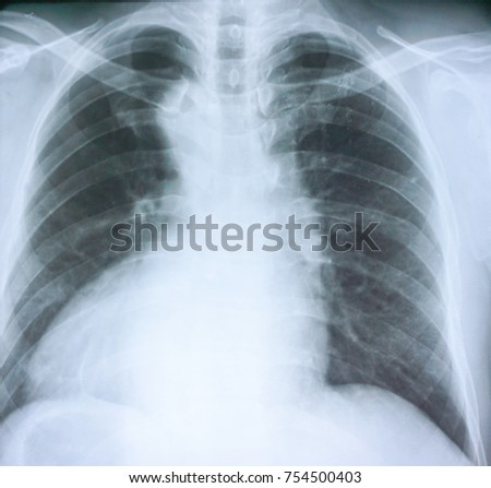 Film chest x-ray  show normal human's chest