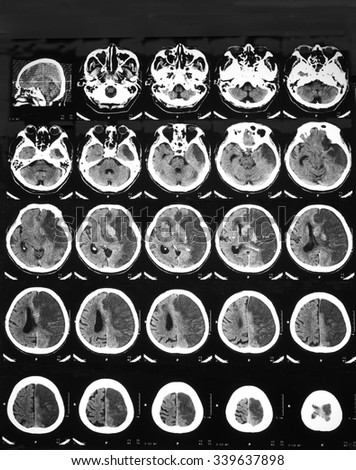 Film CT brain of a with left MCA infarction, FU at 2 days after suspected of hemorrhagic transformation: Revealed acute thrombosis at left MCA, hemorrhage within left BG and caudate nucleus,and IVH.  - stock photo