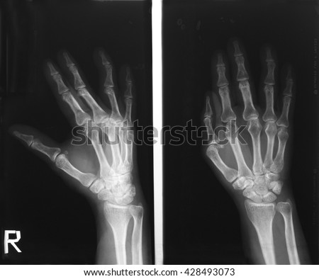 Film right hand in a 56 years old woman who fall during climbing down the mountain and withstands the stone ground with her right hand; there is swelling of her right hand and wrist.