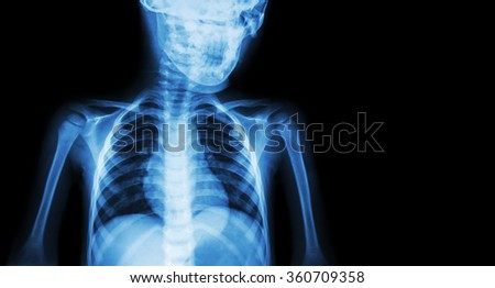 Film x-ray body of child and blank area at right side ( Medical background )