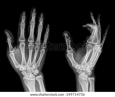 film xray both hand ap show stock photo royalty free 249714736 shutterstock. Black Bedroom Furniture Sets. Home Design Ideas