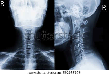 Film x-ray c-spine (AP,Lateral view) : show normal human's c-spine or cervical spine