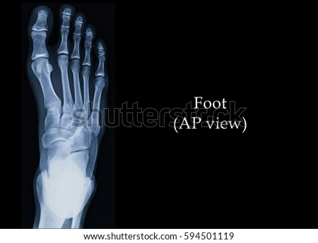 Film Xray Foot Ap View Show Stock Photo Royalty Free 594501119