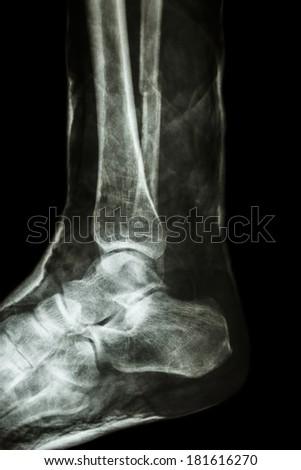 film x-ray fracture shaft of fibula(leg's bone) with cast - stock photo