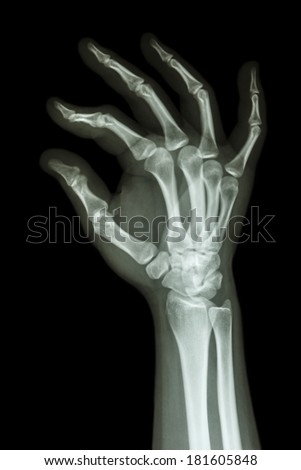 film x-ray human's hand and OK symbol