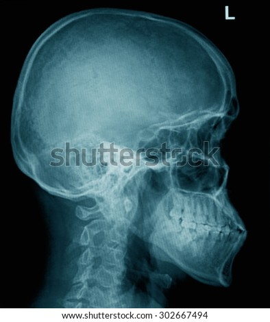 film x-ray human's skull and cervical spine