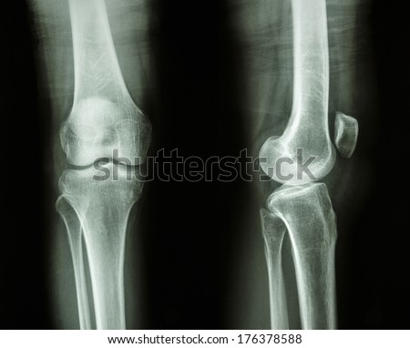 Film x-ray knee AP/lateral : show normal human's knee - stock photo