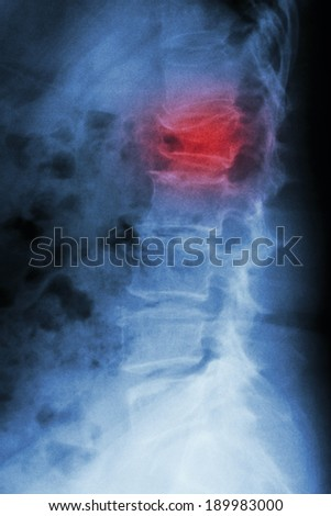 Film x-ray lumbar spine lateral : show burst fracture at lumbar spine (collapse at body of lumbar spine) - stock photo
