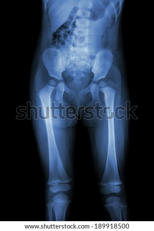 Film x-ray normal body of child (abdomen,buttock,thigh,knee) - stock photo