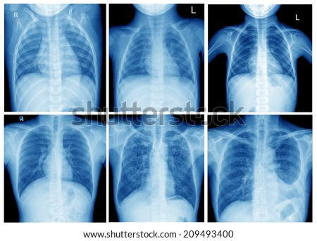 film x-ray of chest collection - stock photo
