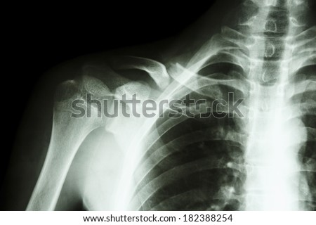 film x-ray right clavicle(collarbone) : show fracture right clavicle