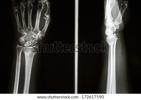 Film X-ray show fracture distal radius (Colles' fracture) (Wrist) - stock photo