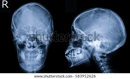 Film Xray Skull APLAT View Show 스톡 사진(사용료 없음) 583952626 ... X Ray Views Of Skull