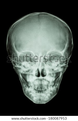 film x-ray skull AP : show normal thai child's skull