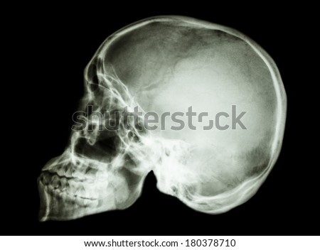 film x-ray skull lateral : show normal asian human's skull (Thai people)