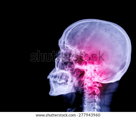 Film x-ray Skull lateral : show normal human's skull and cervical spine and blank area at left side