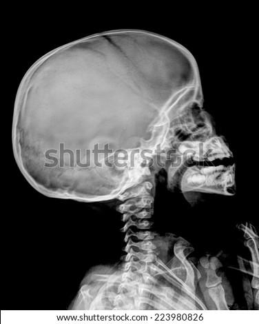 Film Xray Skull Child Stock Photo 223980826 - Shutterstock