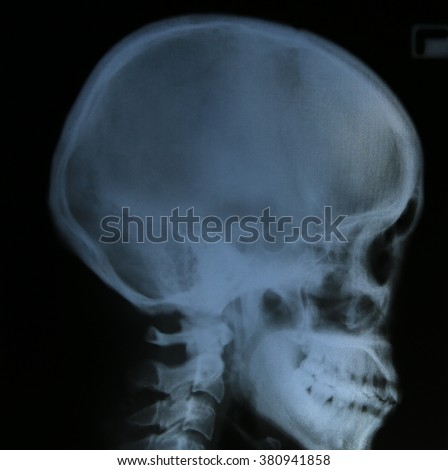 film x-ray skull of human ( Medical , Science and Healthcare concept and background )