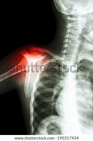 film x-ray transcapula Y view : show child's shoulder and arthritis at shoulder
